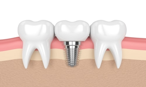 tratamiento de implantologia dental en navalcarnero
